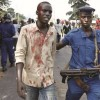 Des blessés dans l'explosion de trois grenades à Bujumbura